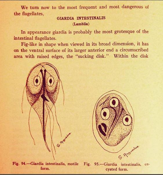 simptome de giardie netratate