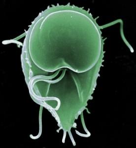 Giardioza: cauze, simptome si tratament, Giardia la simptome umane