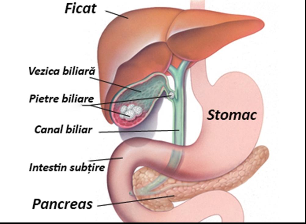 simptomele și tratamentul paraziților canalului biliar