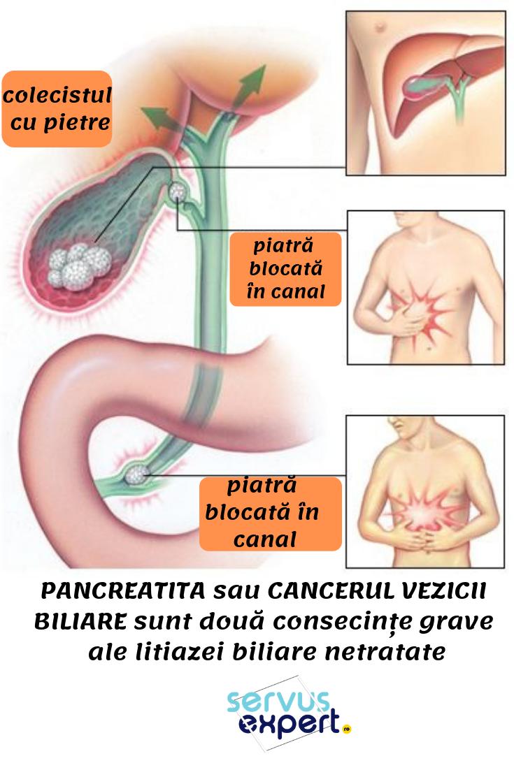 paraziți amoeba în stomacul uman
