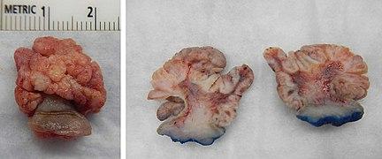 Papiloamele cutanate - Papilom al pielii feței