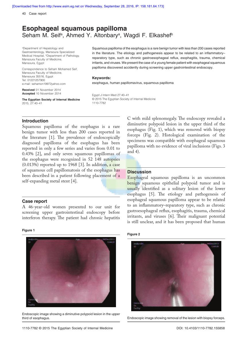 squamous papilloma dysphagia titlul de viermi mici