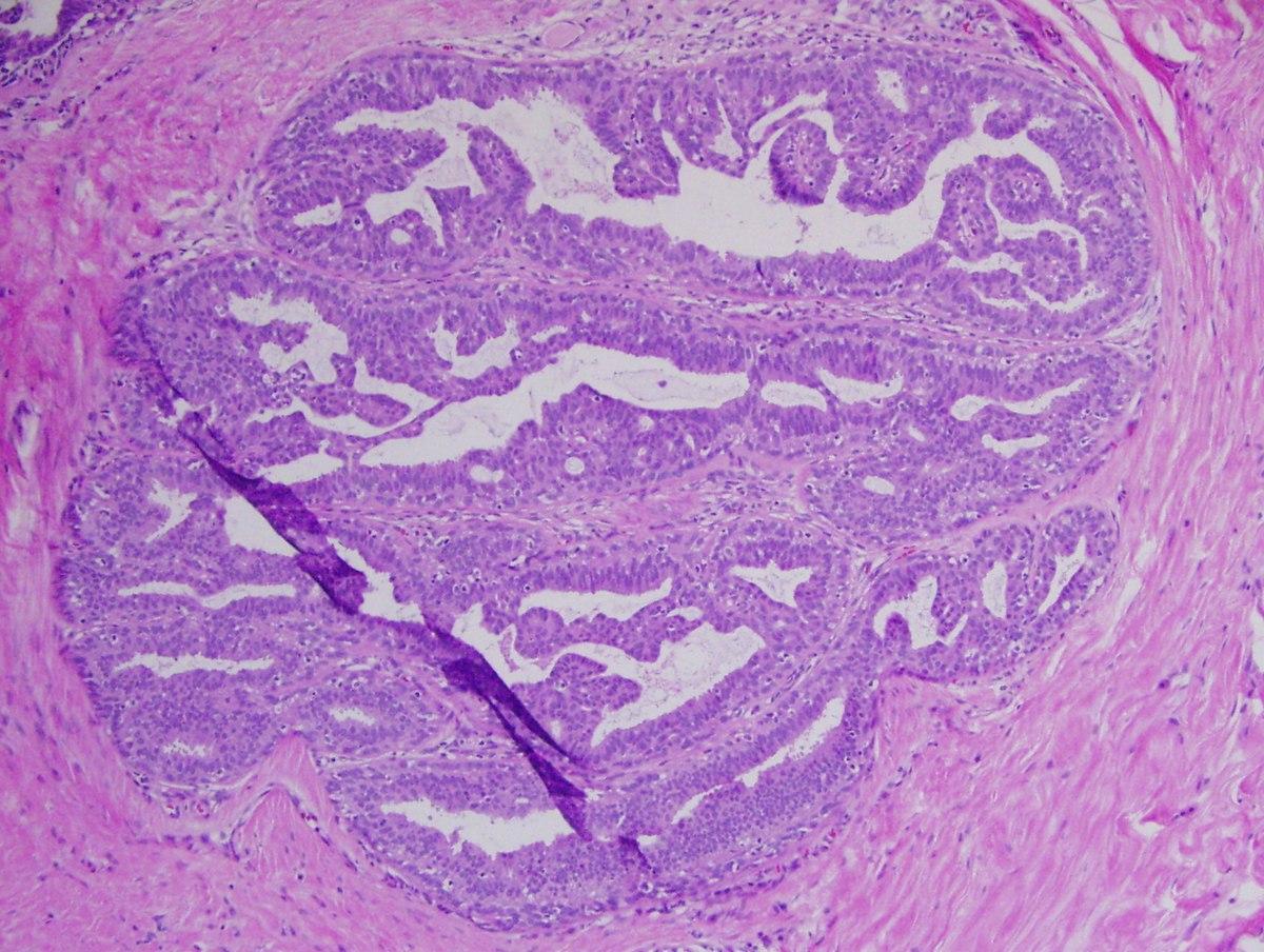 squamous papilloma of tongue histology