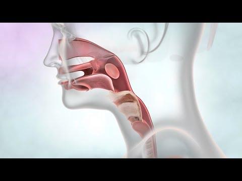 Medicamente de îndepărtare a helmintelor, Dezintoxicare ionică