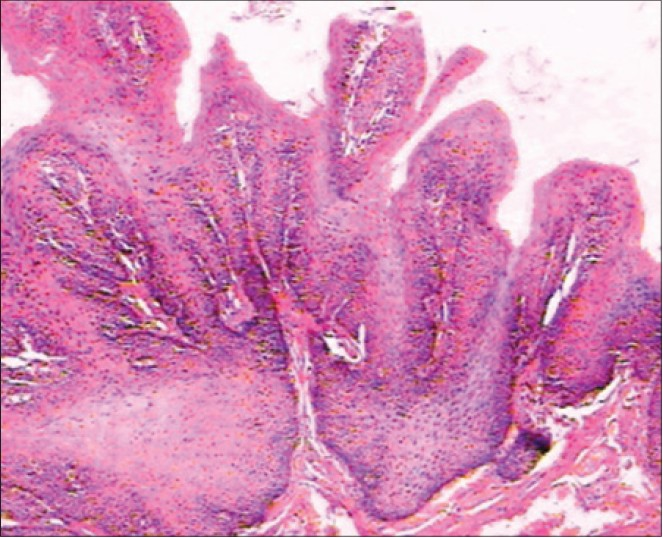 tongue papilloma pathology