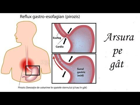 tratament parazitic al gâtului