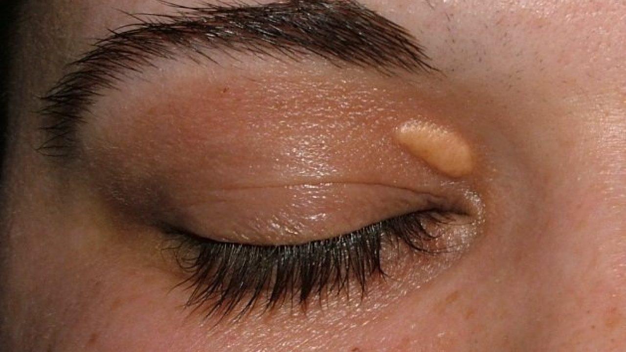 tratamentul chirurgical al papilomului pleoapelor)