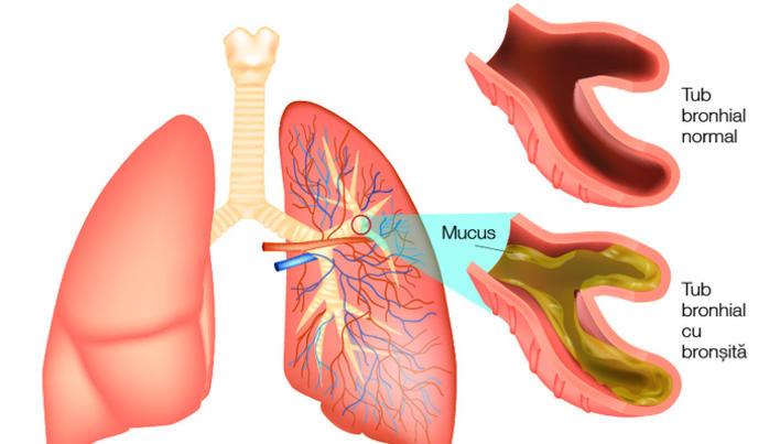 Cum să elimini helmintii din plămâni - Meniu de navigare