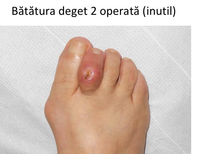 tratamentul plăgilor degetelor)