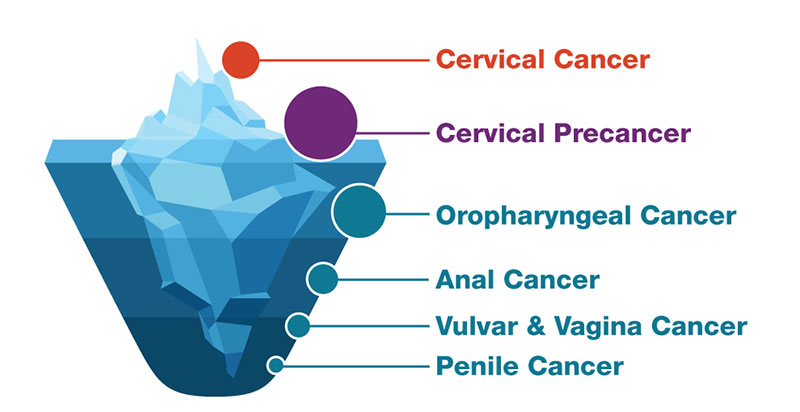 types of hpv cause cancer