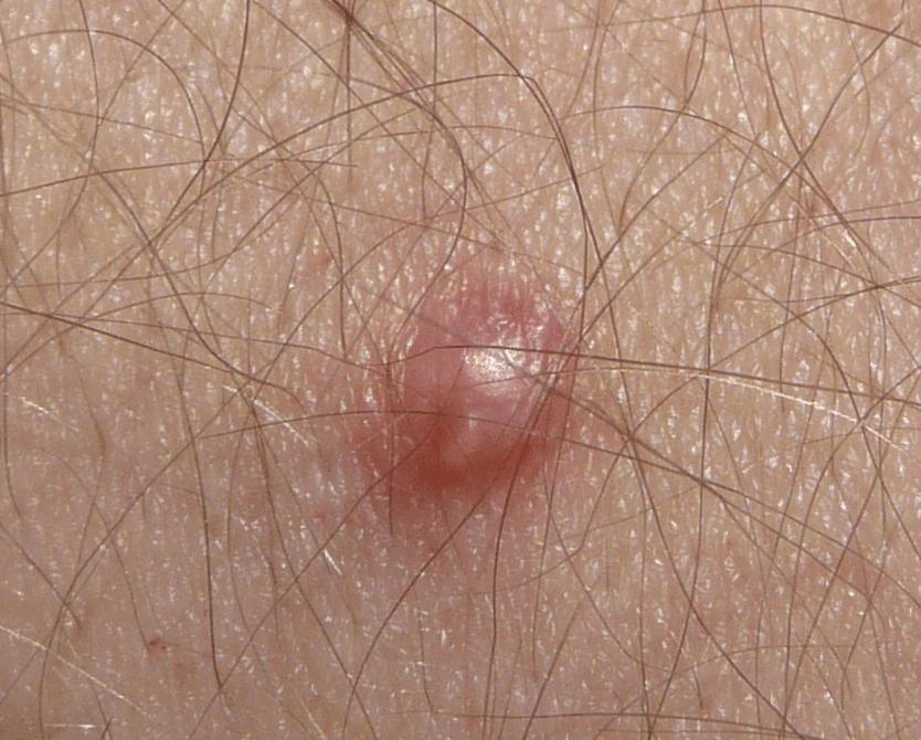verrugas papiloma genitales