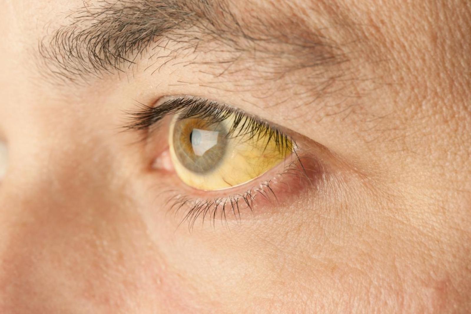 virusul papiloma în ochi