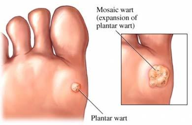 lamblia parazit tedavisi când este mai bine să îndepărtați condiloamele