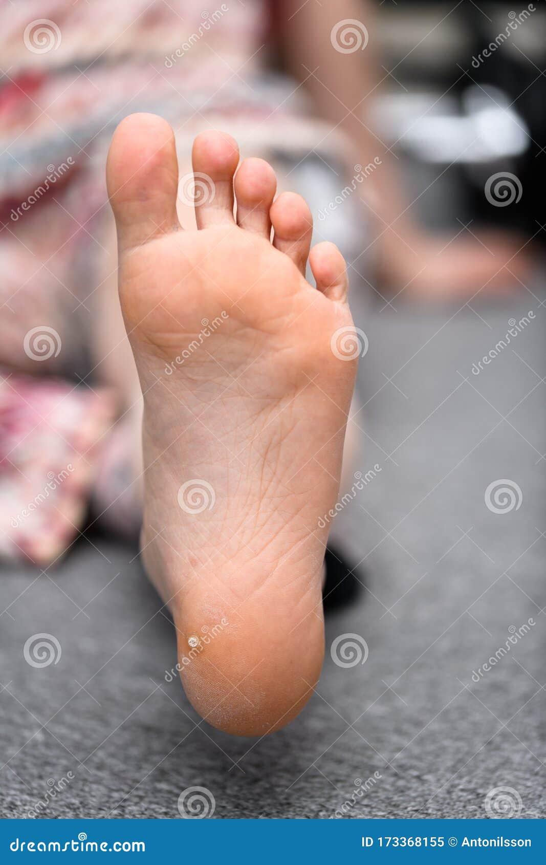 wart toddler foot