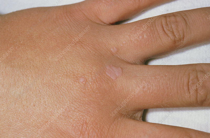 warts on hands hpv virus)