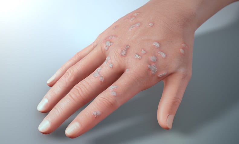 warts on hands palms)
