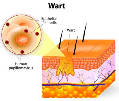 warts unani treatment)