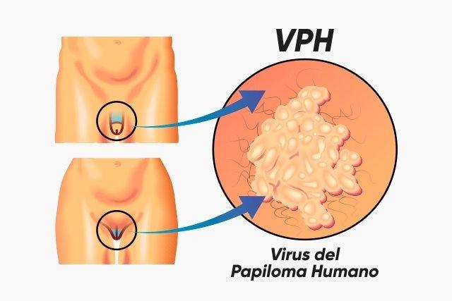 cum se tratează papilomavirusul la femei