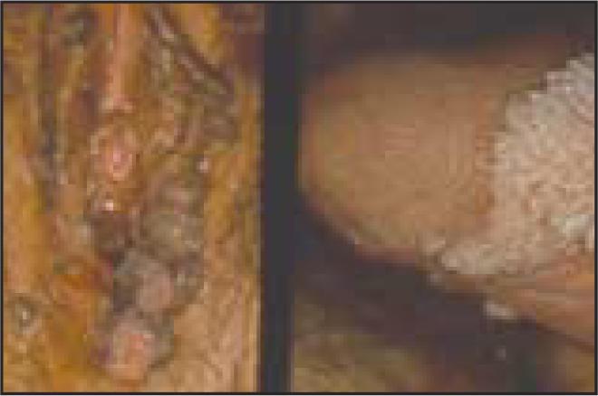 forum condilom cervical plat