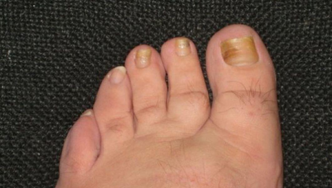 """Unghiile de la picioare, """"barometru"""" pentru cancerul pulmonar"""