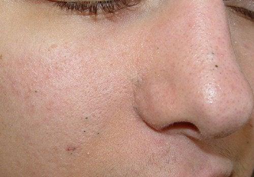 negi plate pe tratamentul feței)
