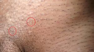 papilloma wart genital gastric cancer unmet needs