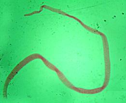 crevni paraziti kod dece lecenje)