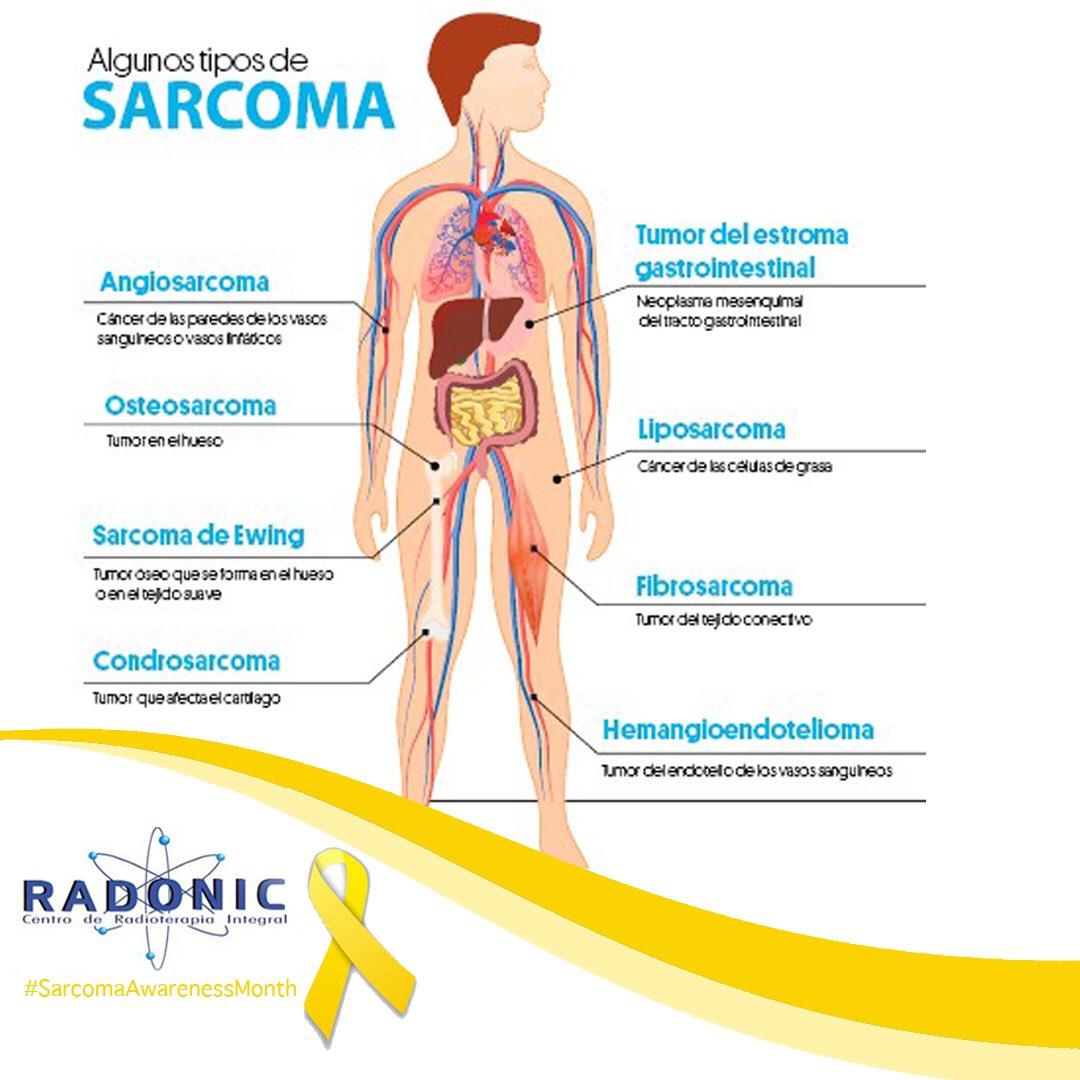 cancer sarcoma tipos)