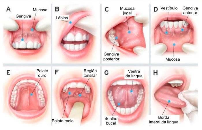 virus hpv e cancer de boca)