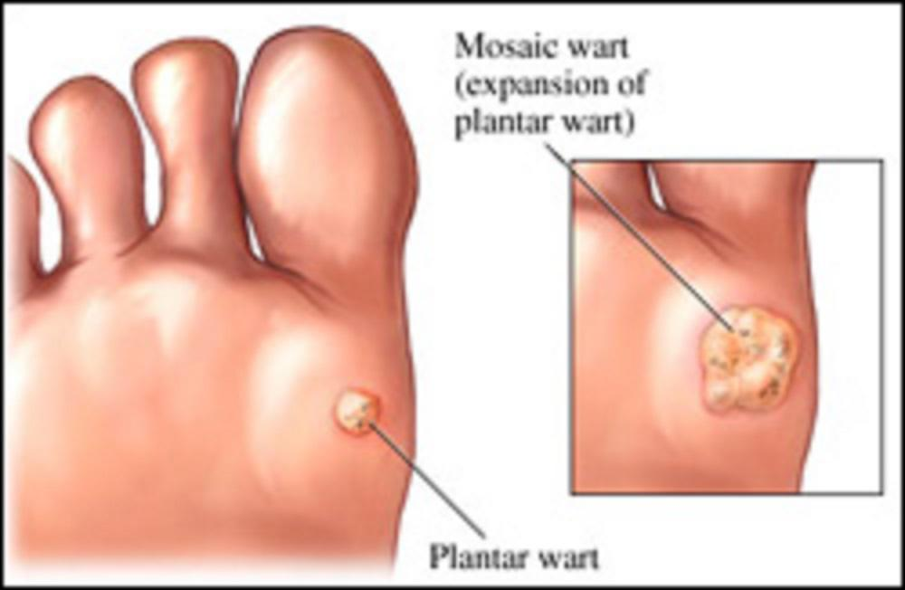 hpv warts on feet causes