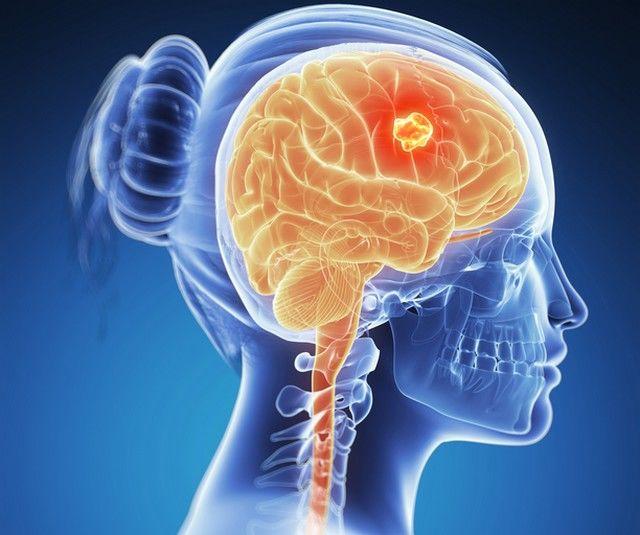 paraziți în creierul uman