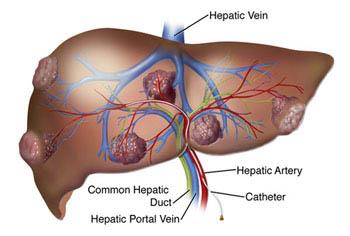 cancerul hepatic cauze)