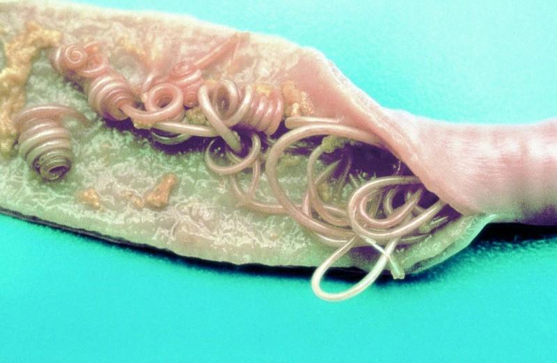 giardien simptom mensch behandlung parazitii au castigat procesul
