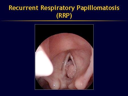 respiratory papillomatosis neonate)