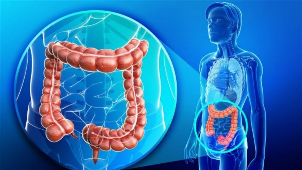 cancer de colon nivel 3