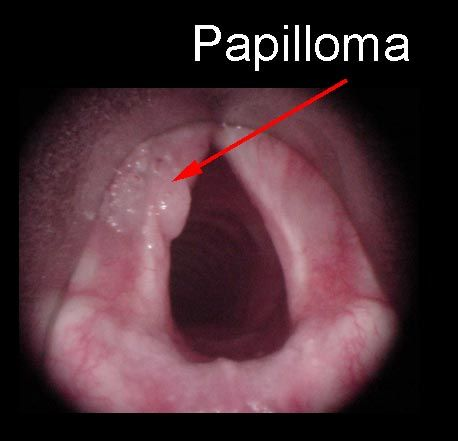 squamous cell papilloma of larynx)