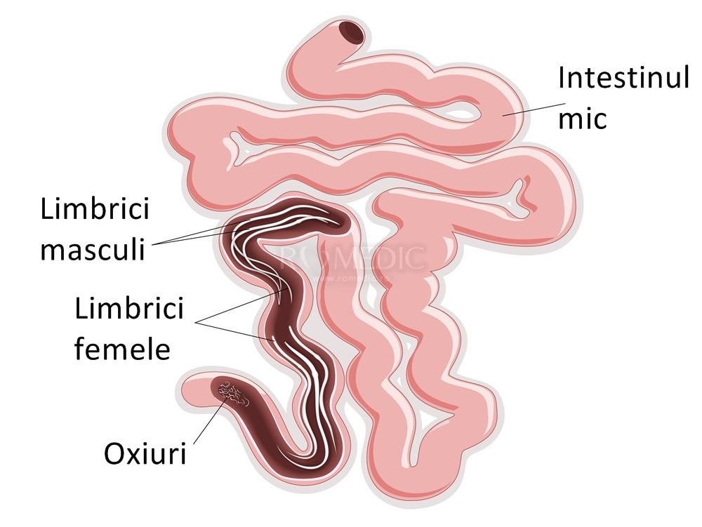 simptome și simptome viermi