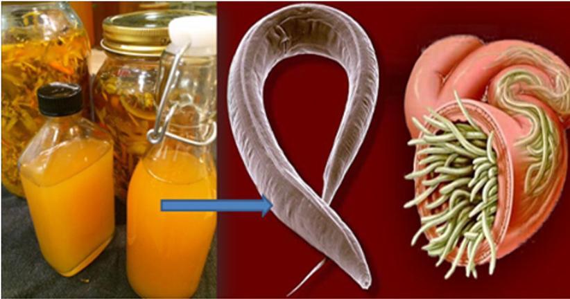 Verme oxiurus nas fezes, Tratamento eficaz para oxiurus