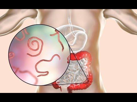cinci tablete parazite