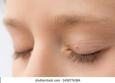 condilom peste ochi