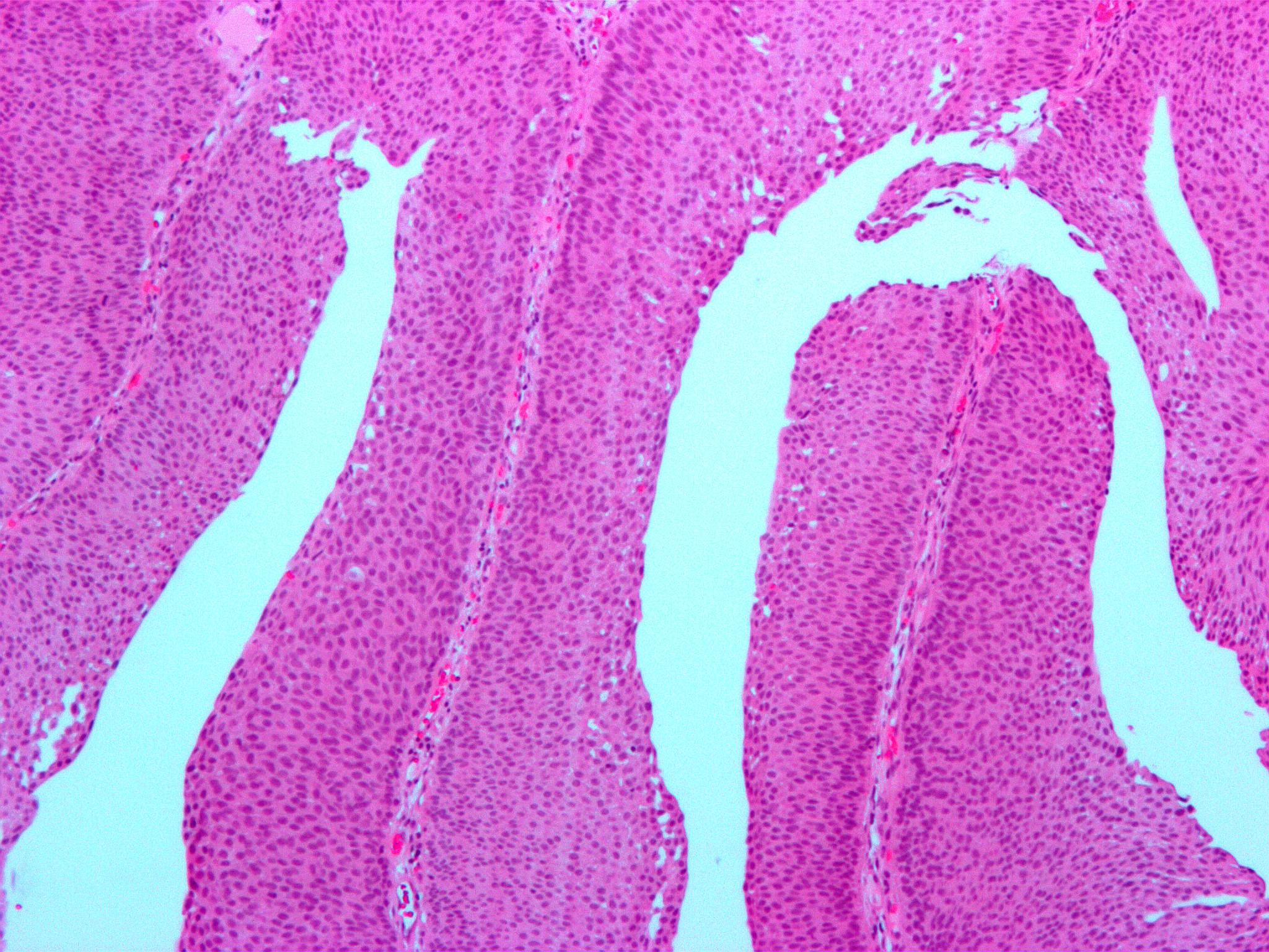 Papillary urothelial hyperplasia histology
