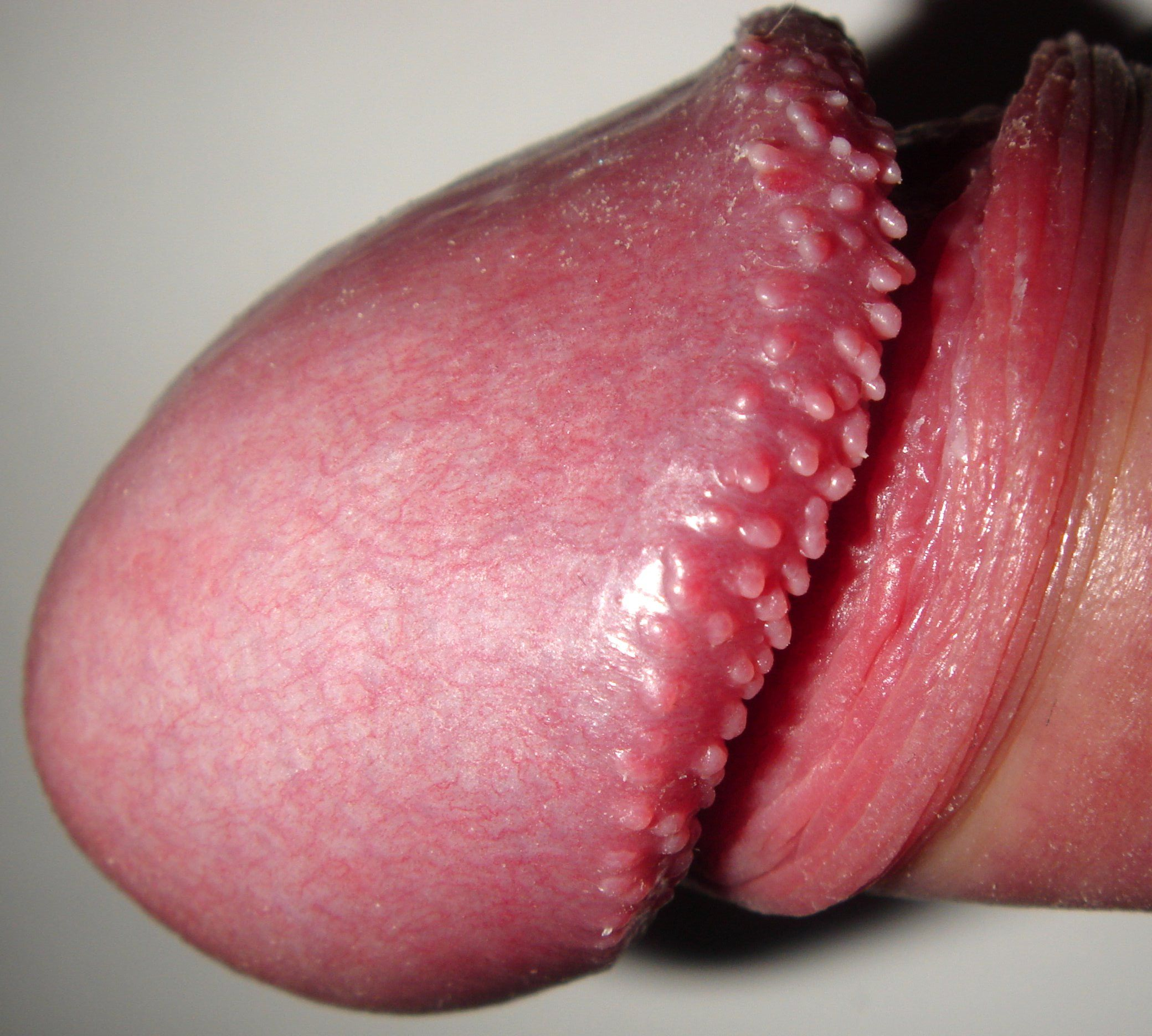 hpv uncircumcised warts)