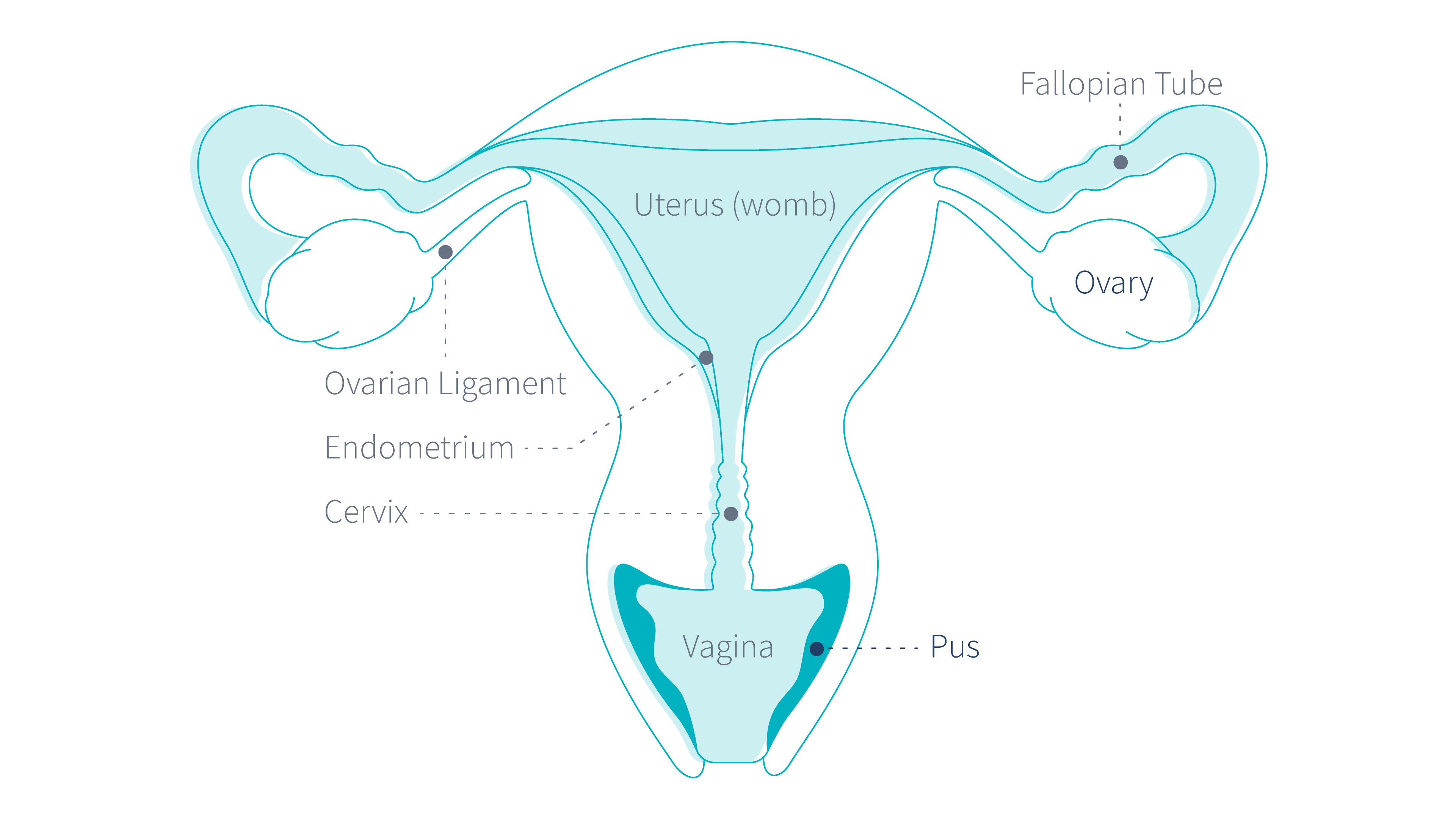 ovarian cancer yellow discharge