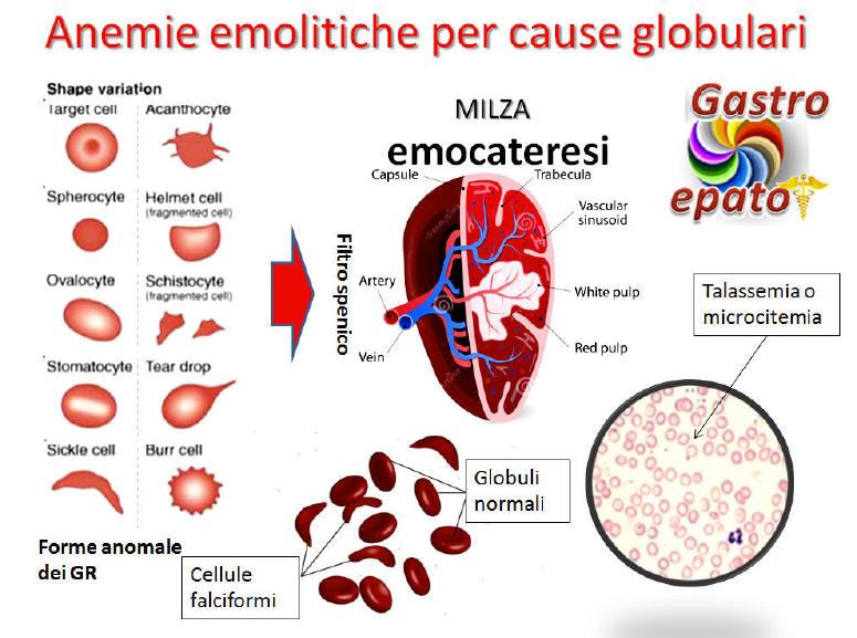 anemie emolitiche)