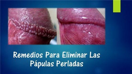 papiloma hirsutoide en hombres tratamiento)