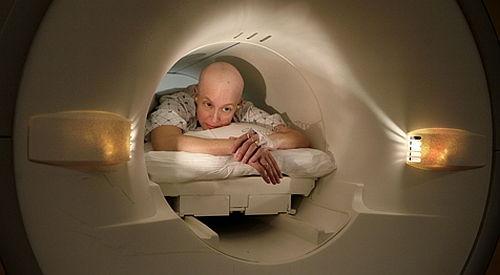 cancer colon copii simptome)