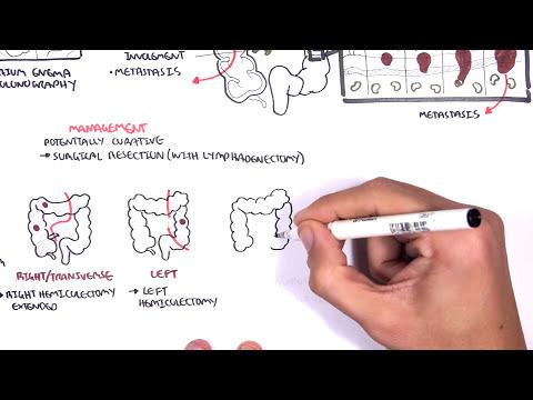 papillomavirus humain vaccin recto papillomavirus