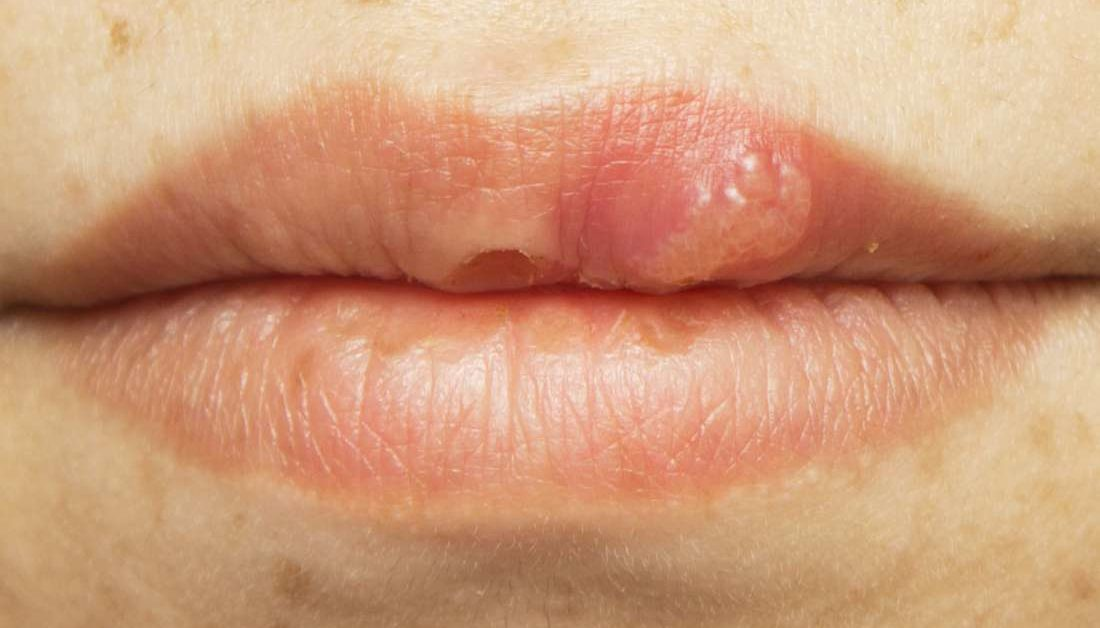 hpv symptoms on mouth