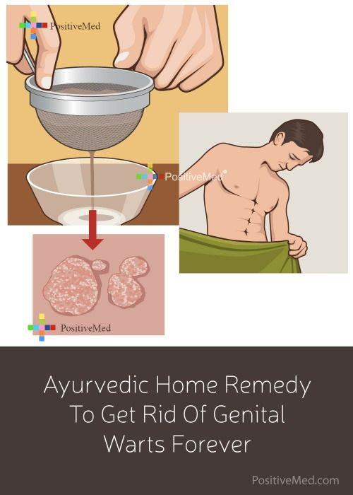 hpv warts cure natural