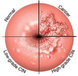 îndepărtarea condilomului pe colul uterin recenzii de ce o mulțime de papiloame